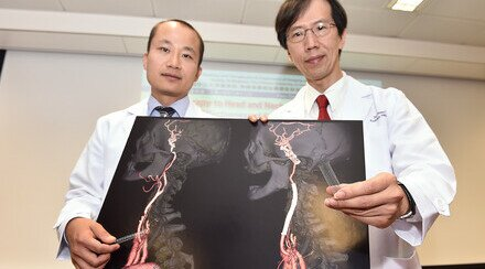 Radiotherapy to Head and Neck Raises Risk for Stroke CUHK Proved Effectiveness of Carotid Angioplasty and Stenting