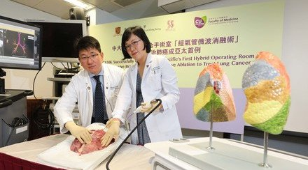 CUHK Successfully Conducts Asia-Pacific's First Hybrid Operating Room Non-invasive Bronchoscopic Microwave Ablation to Treat Lung Cancer
