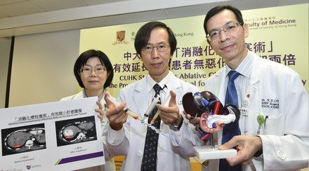CUHK Study Proves Ablative Chemoembolization Doubles the Progression-Free Survival for Liver Cancer Patients