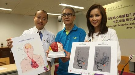 CUHK Sees Atrial Fibrillation-related Stroke Cases 3 Times Higher Over 15 Years