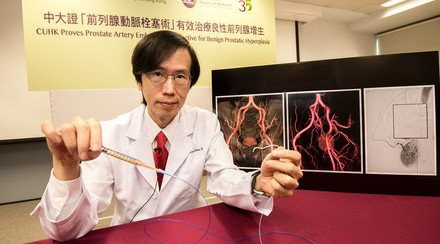 CUHK Proves Prostate Artery Embolization Effective for Benign Prostatic Hyperplasia