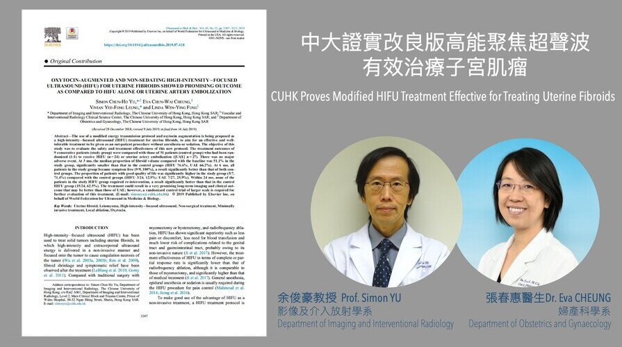 CUHK Proves Modified HIFU Treatment Effective for Treating Uterine Fibroids