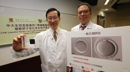 CUHK Launches World's First Study on Ovum Ageing and Female Infertility by Using Single-Cell Genomics Technology