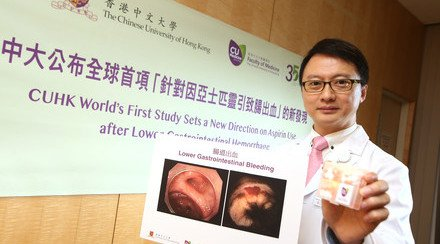 CUHK World's First Study Sets a New Direction on Aspirin Use after Lower Gastrointestinal Hemorrhage
