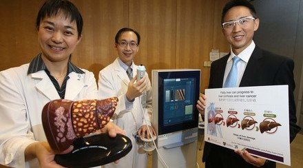 CUHK Discovers Fatty Liver Causing Severe Liver Fibrosis or Cirrhosis in 1 Out of 5 Diabetic Patients