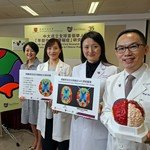 CUHK Sets up the Global First Research Registry on Early Onset Dementia in Chinese Population