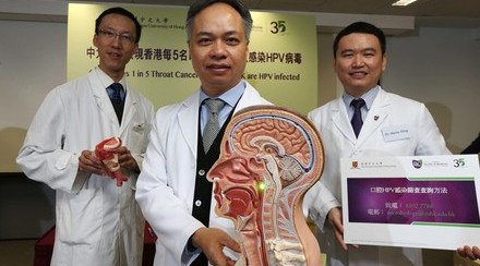 CUHK Research Shows 1 in 5 Throat Cancer Patients in HK is HPV infected