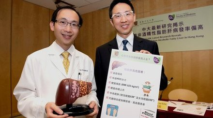 CUHK Latest Research Reveals over 100,000 New Non-alcoholic Fatty Liver Cases in Hong Kong Annually