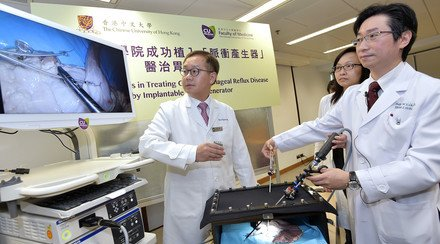 CUHK Succeeds in Treating Gastroesophageal Reflux Disease by Implantable Pulse Generator