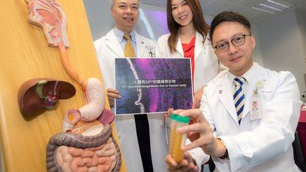 CUHK Establishes Asia's First Microbiota Transplantation and Research Centre